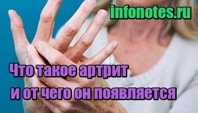 миниатюра Что такое артрит и от чего он появляется